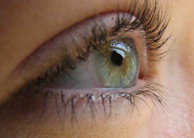 http://www.akhbaar.org/images/eye_19042010.jpg